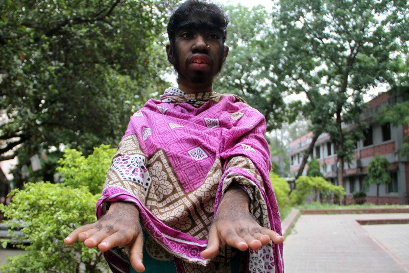 girl with werewolf syndrome 3