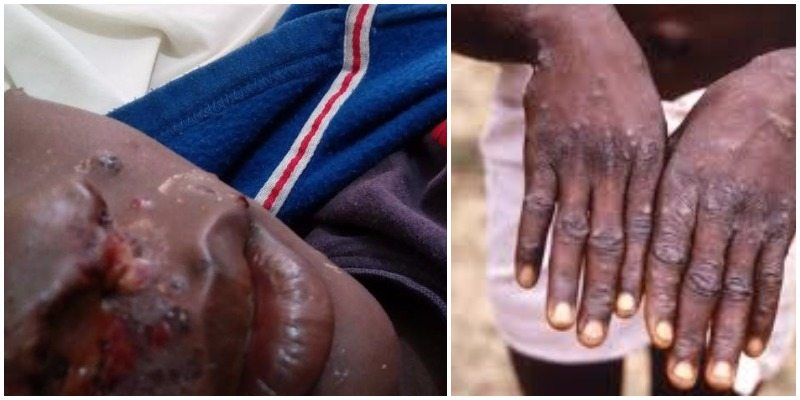 Monkey Pox Epidemic Cases Rise to 13 As Bayelsa Govt. Battles Scourge
